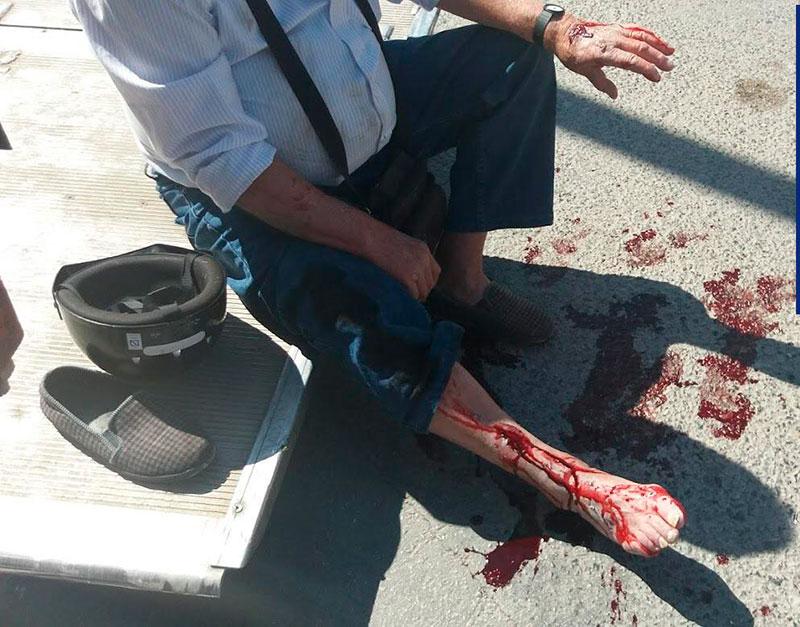 resulta-herido-accidente-trafico-cieza