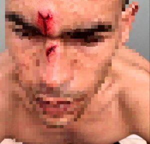 Un individuo golpea a un hombre con un silla en la cara durante una pelea en Cieza